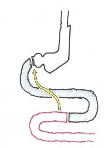 biliopankreatische-diversion-schritt-1