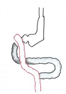 biliopankreatische-diversion-schritt-2